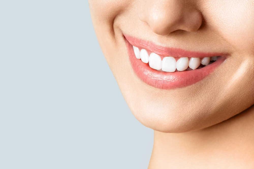 Cada vez mas gente cuida de su sonrisa para ganar en belleza